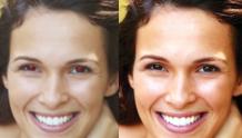 Eliminación de ojos rojos